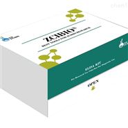 人Ⅲ型前膠原氨基末端肽(PⅢNP)ELISA