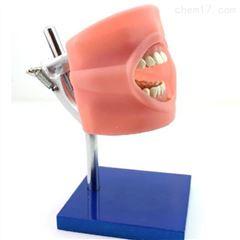 HY-Y快速固化牙齿牙模模具胶