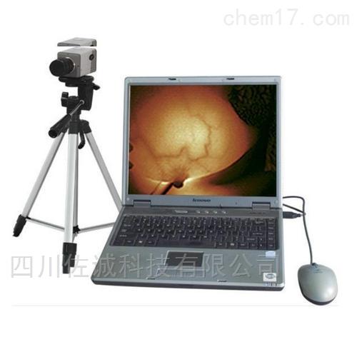 RY-1100A型红外乳腺诊断仪(笔记本)