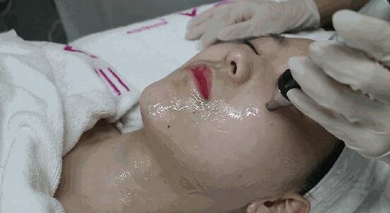 眼部超声波再生操作