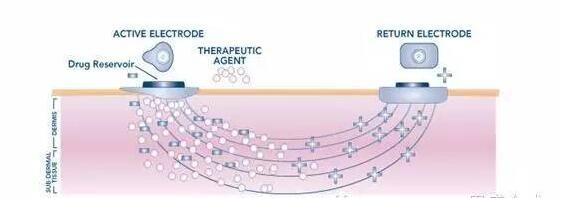 离子电渗疗法